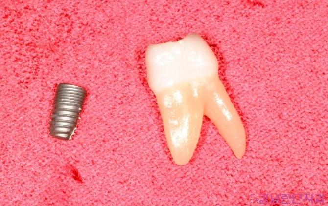 치과보험적용 2.jpg